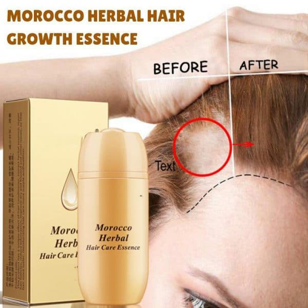 Morocco Herbal Hair Growth Essence