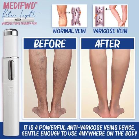 MediFwd Blue Light Therapy Varicose Veins Pen