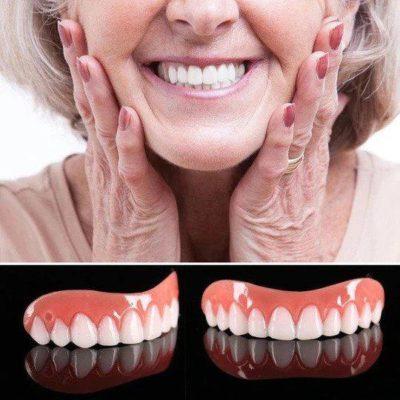 Joyful Smile Veneers (Upper & Lower)
