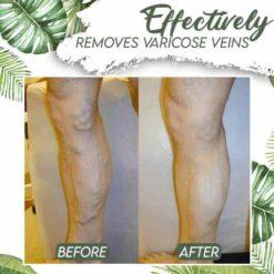 Venous Disorder Home Treatment Set