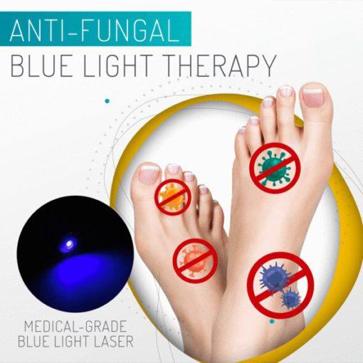 Renew Anti-Fungal Home Treatment Set