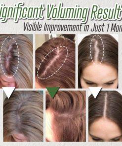 Hair Growth Ginger Spray