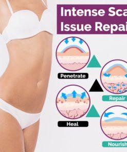 InvisiScar Skin Renewal Cream